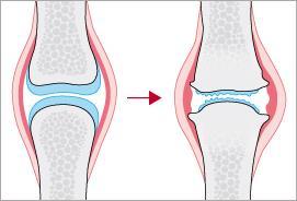 Artrose in basisverzekering